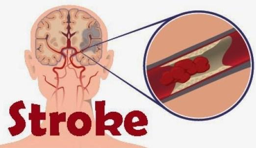 penyakit-stroke